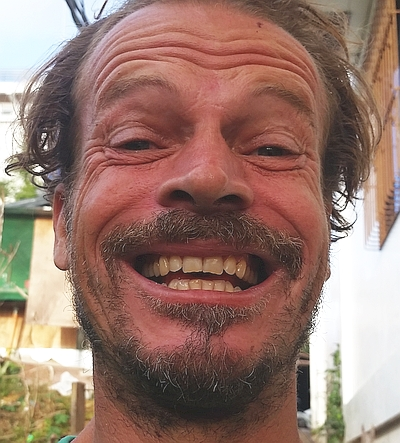 coron-dentist-palawan-20170123_165243