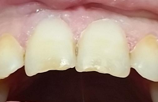 coron-dentist-palawan-20170123_165557